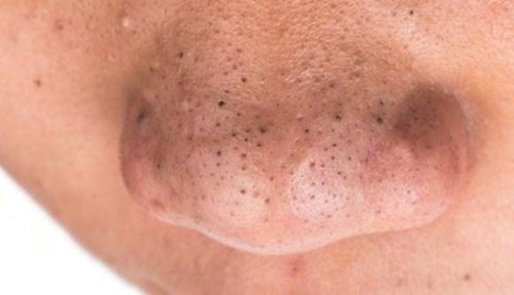 komedo-di-hidung